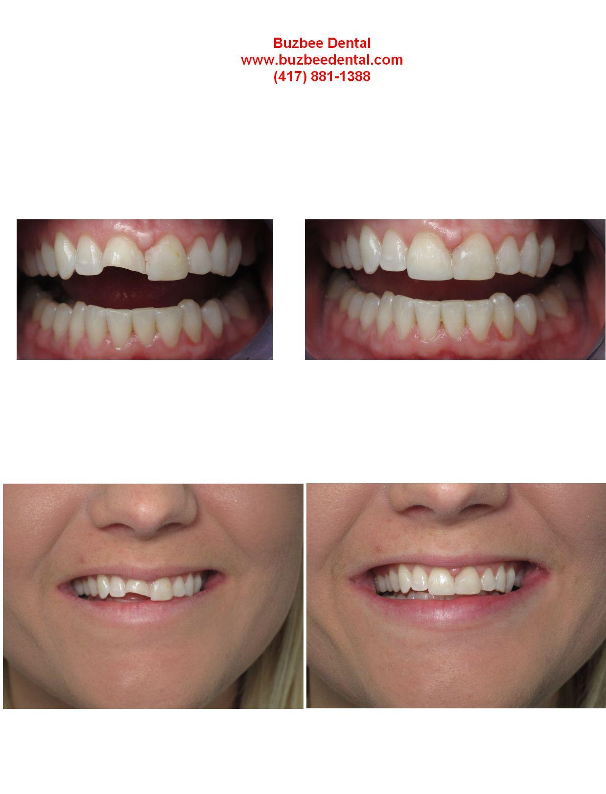 Unsuitable Oral Care Dental Implants Toothfairyiscomingtonight Dentalimplantsbeforeandaftersearching Dental Crowns Dental Dental Implants Cost