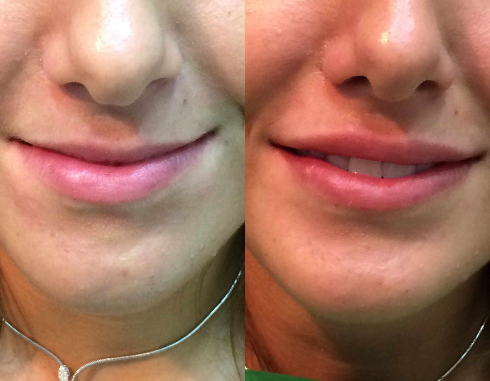 Before and after lips injected with hyaluronic acid Revanesse ultra
