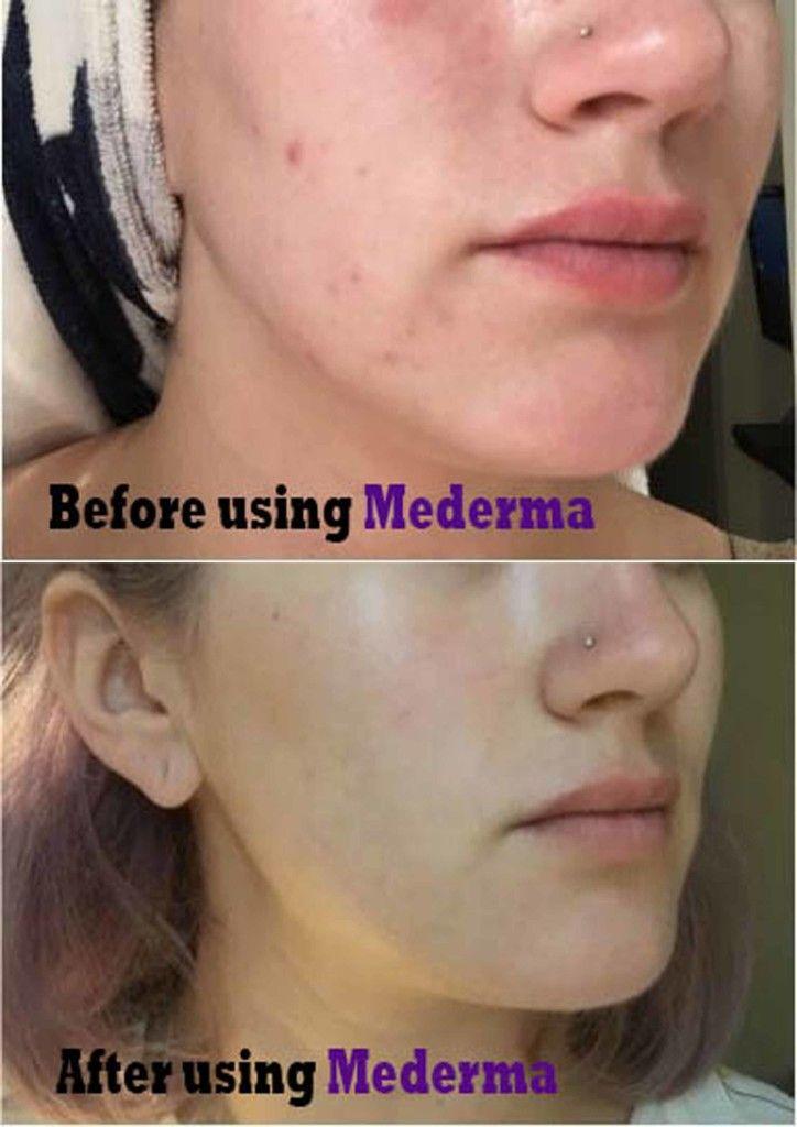 Mederma Acne scars cream   Skin care   Pinterest   Acne