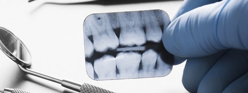 Dental xray near me in 2020 dental x ray panoramic
