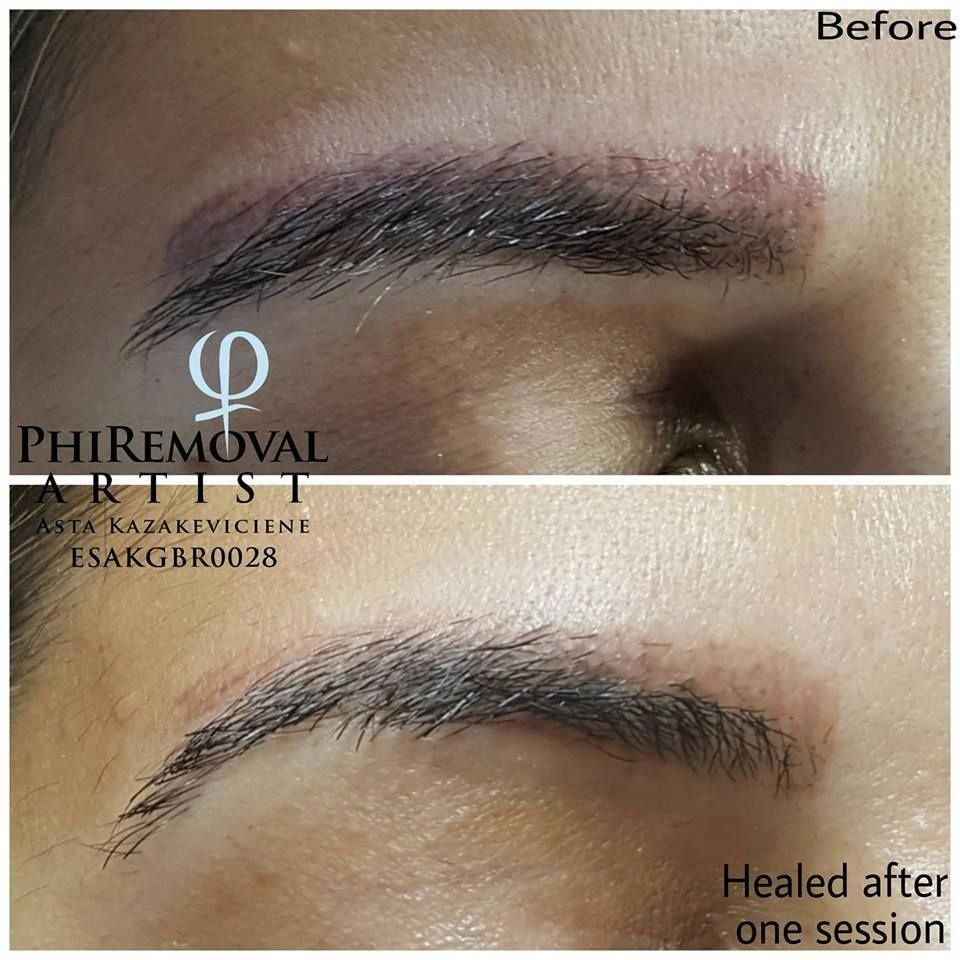 Eyebrows Removal procedure howtoremovetattoos Eyebrow