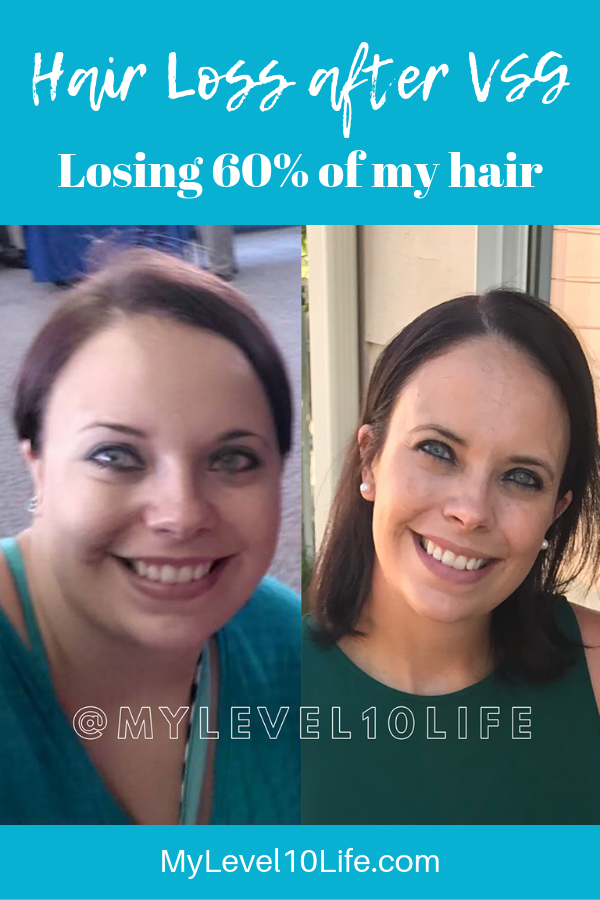 Pin On Extreme Weight Loss Journey