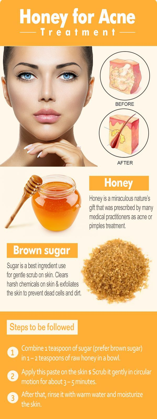 Cure Acne with Honey  Acne and blackheads  Pinterest  Pimple