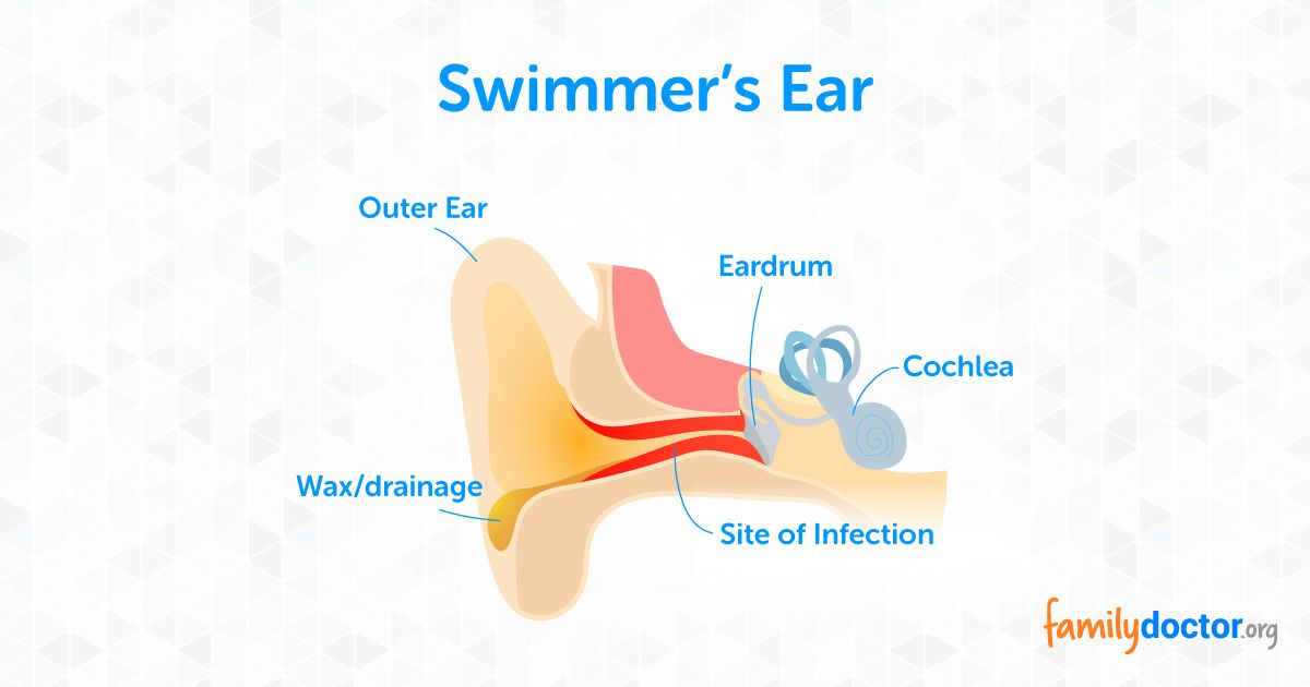 Otitis Externa What To Do For Swimmers Ear Familydoctor Org Swimmers Ear Otitis Externa Swimmer