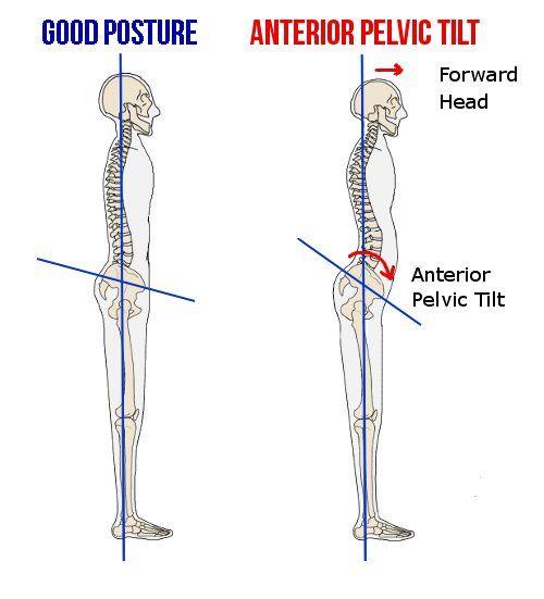 Anterior Pelvic Tilt ~ Lists an extensive set of symptoms, but not ...
