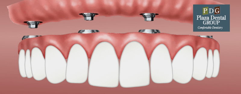 Dental Implants Cost Guide (With images) Dental implants