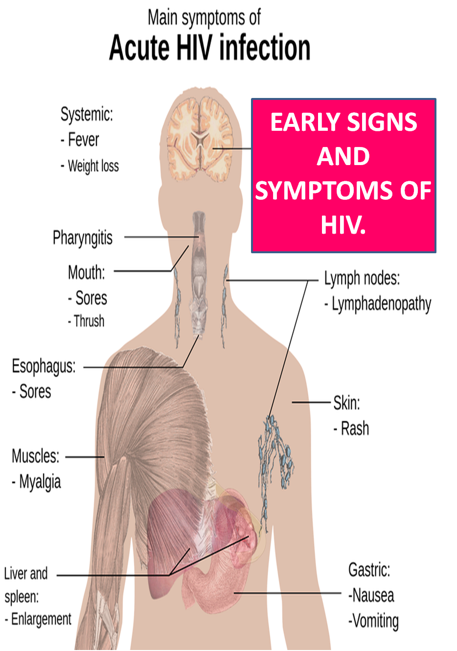 small resolution of heavy signs and symptoms of hiv in an early stage