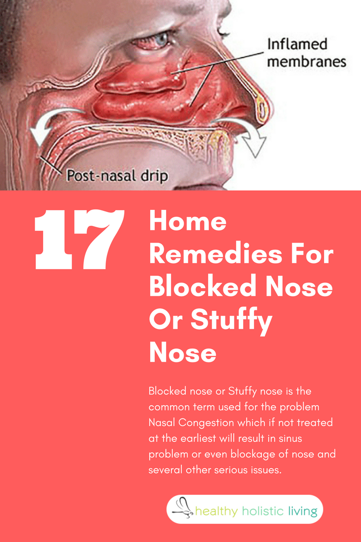 17 Home Remedies For Blocked Nose Or Stuffy Nose | Blocked nose ...
