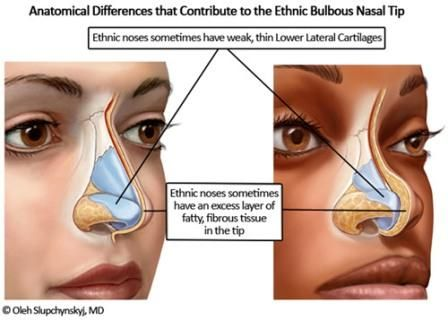 bulbous nose tip before and after rhinoplasty illustration stuff