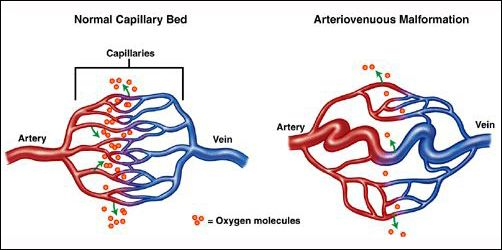 as per ayurvedic point of view avm arteriovenous malformation
