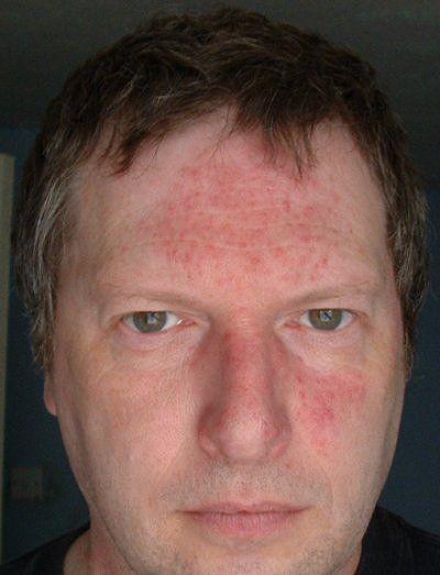 Acne Rosacea Dmso Antibiotics Tetracycline Aspirin Essential Oils For Rosacea Natural Remedies For Rosacea Rosacea Symptoms
