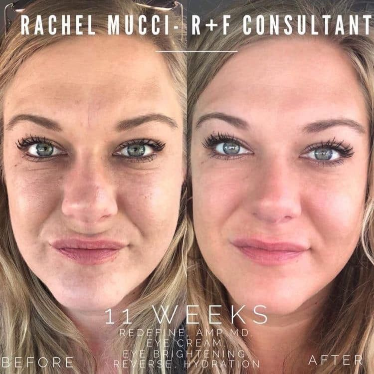 If You Have Fine Lines Wrinkles Large Pores Rough Or Dull Skin Our Redefine Regimen May Be A G Rodan And Fields Rodan And Fields Reverse Skin Care Business