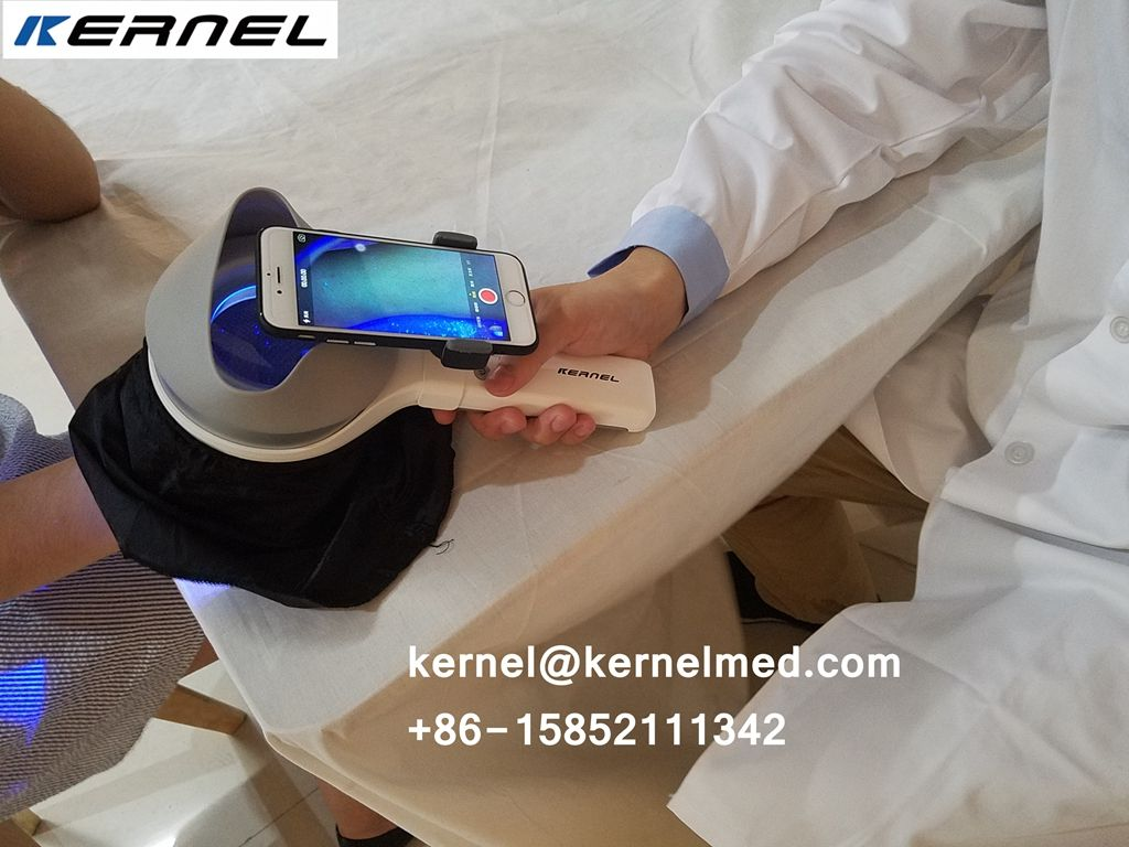 Dermatology Use Kernel Kn 9000b 365nm Uva Led Woods Lamp Application For Detect Pigment Abnormalities Skin Infections Por Skin Infection Wood Lamps Vitiligo