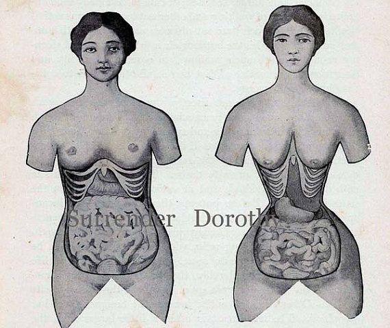 95324ba7f898d Corset Disfigurement Human Female Anatomy Vintage Medical Chart ...