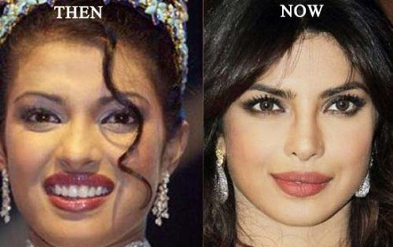 priyanka chopra   plastic surgery   pinterest