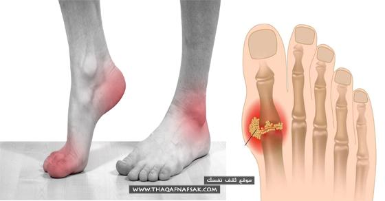 إذا كنت تعاني من النقرس المؤلم وتريد معرفة ماهو علاج النقرس الفعال و تحتاج إلي تخفيف من الألم التي يسببها فستجد هنا الدل Home Remedies Ballet Shoes Sport Shoes