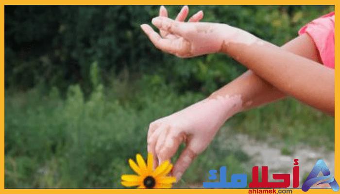 تفسير رؤية البهاق في المنام علاقته بجسم الرائي Holding Hands Hands