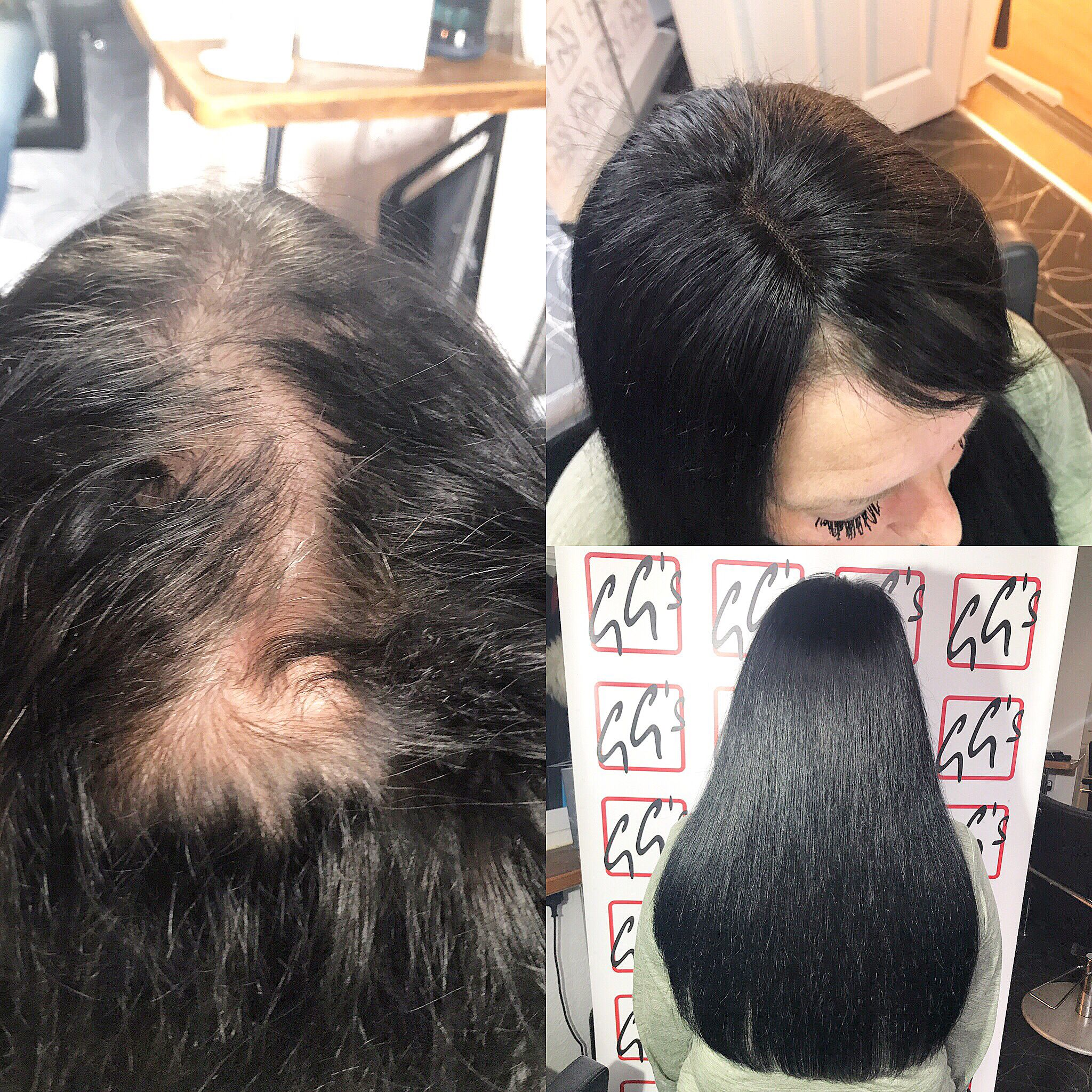 Our Client Suffered From Female Pattern Baldness On The Top Of Her
