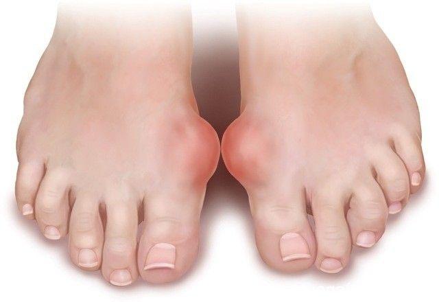 النقرس أسبابه وعلاجه Gout Treatment Gout Remedies Home Remedies For Gout