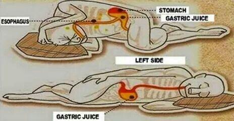 Gastric Problems Sleep On Left Side Benefits Of Sleep Gastric Juice