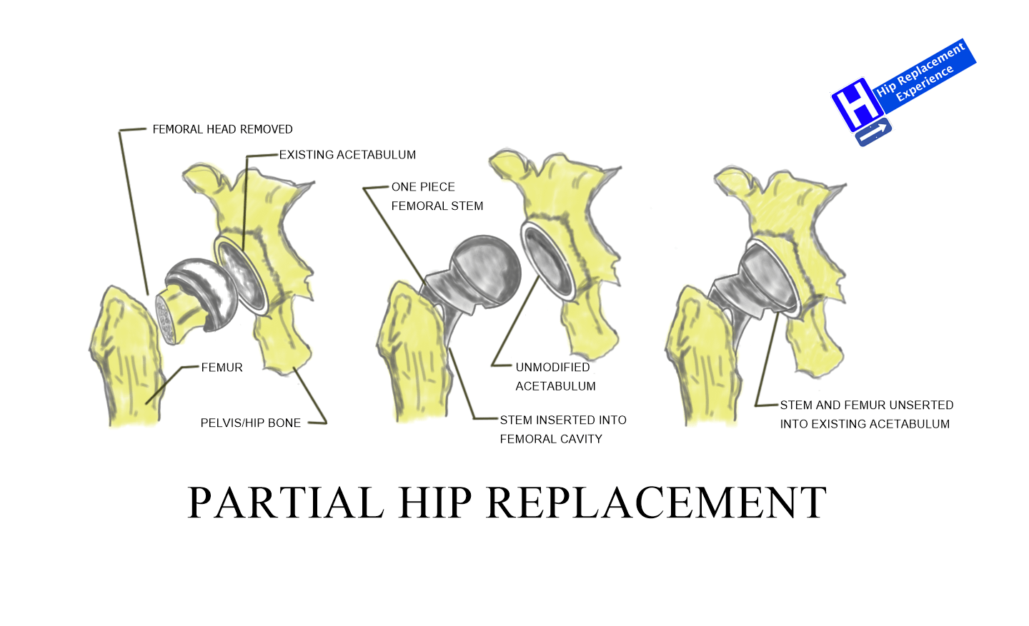 3 Hip Replacement Types - Partial Hip Replacement | Hip