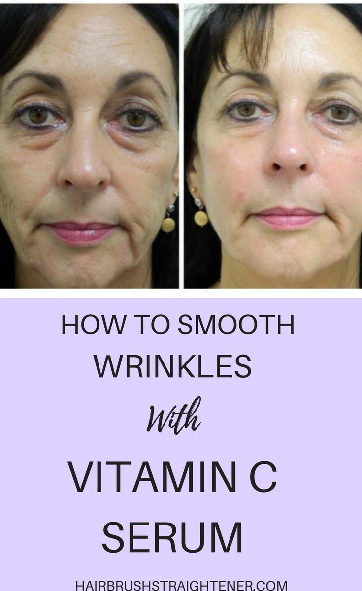 vitamin c for wrinkles