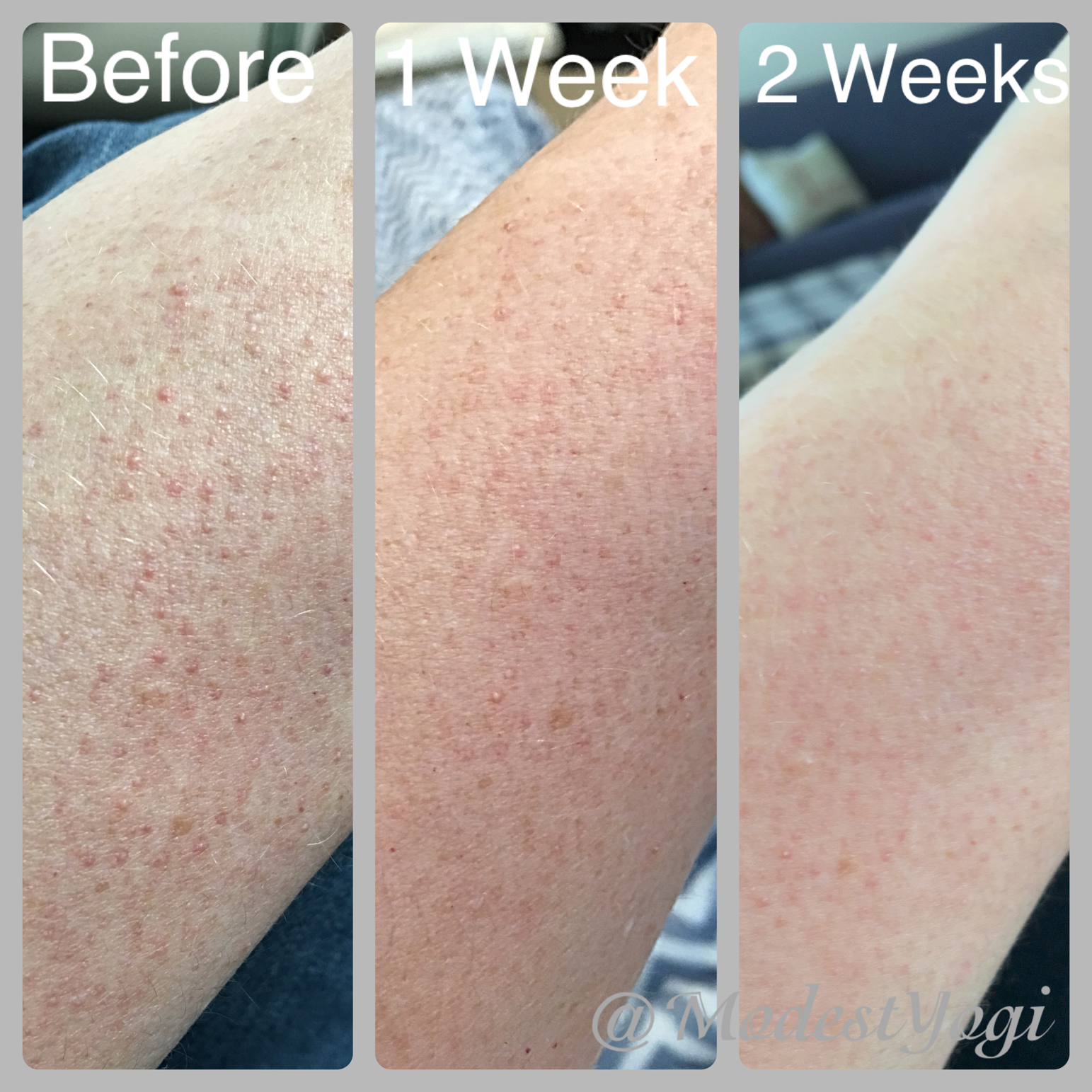 Light Therapy Results For Keratosis Pilaris Light Therapy