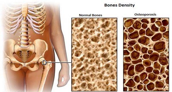 35+ Que es osteopenia y osteoporosis viral