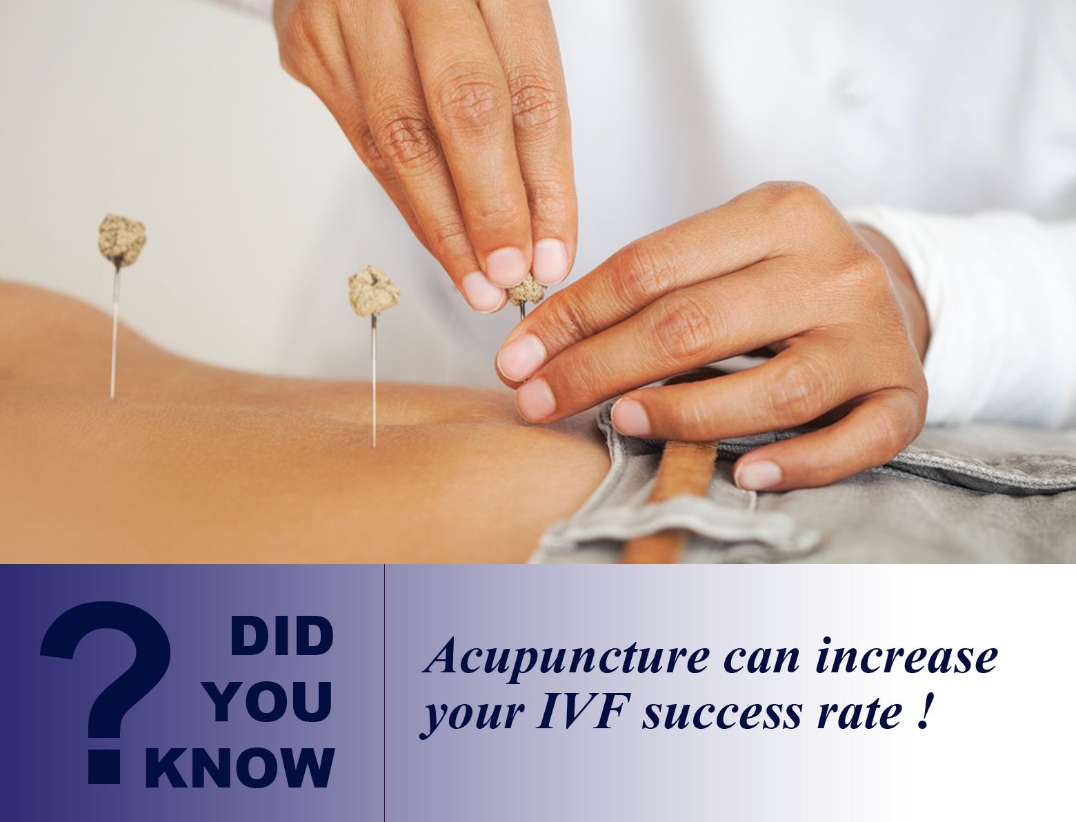 Could acupuncture success be all in the mind