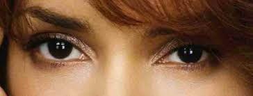 Resultado de imagem para olhos vermelhos naturais albino