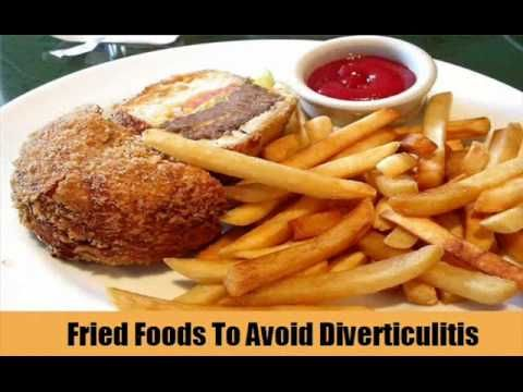 Top 6 Foods To Avoid With Diverticulitis   Crohn's Diet