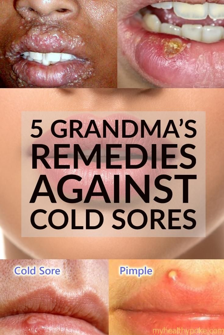 Cold sores 5 home remedies to apply cold sores remedies