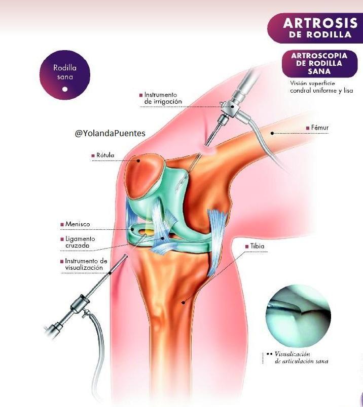 Pin de Dra. Yolanda Puentes Zamora en #Medicina #Deporte ...