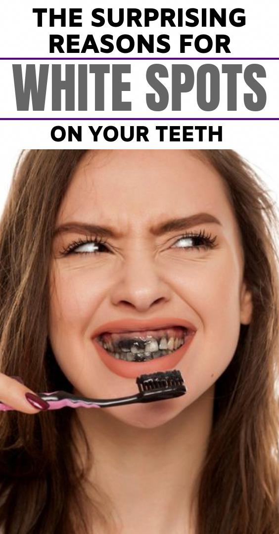 Weiße Flecken auf den Zähnen führen dazu, dass die Leute sich ihres Lächelns bewusster werden …   – A-Z about Health
