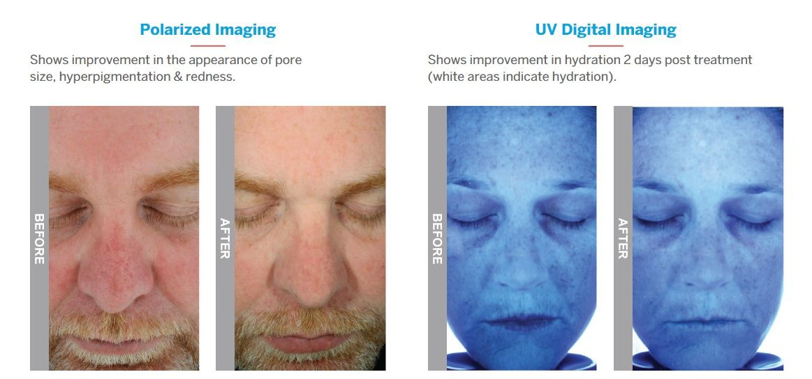 Hydrafacial Before And After Images New Serenity Spa