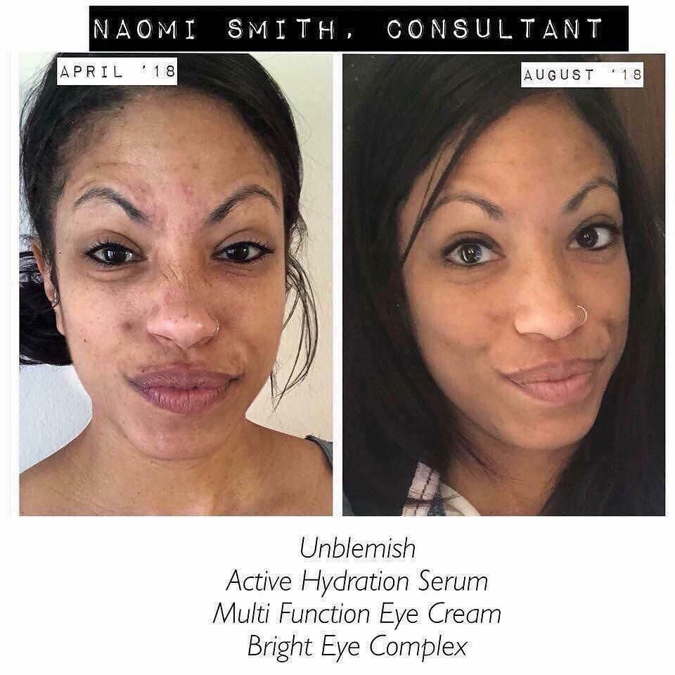 Here S What Naomi Had To Say Let S Be Real My Skin Used To Be My Biggest Insecurity Cyst Face Products Skincare Cheap Skin Care Products Rodan And Fields
