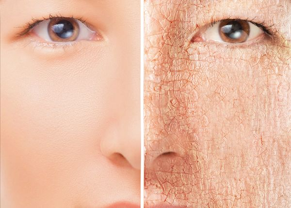 How To Deal With Dry Patches On The Face Care En 2019 Dry