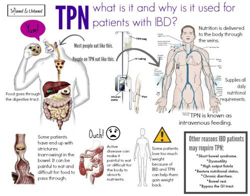 Pin by Sarah Snider on Gastroparesis | Pinterest