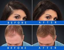 Before & After Nanogen Hair Fibres  www.nanogen.ae