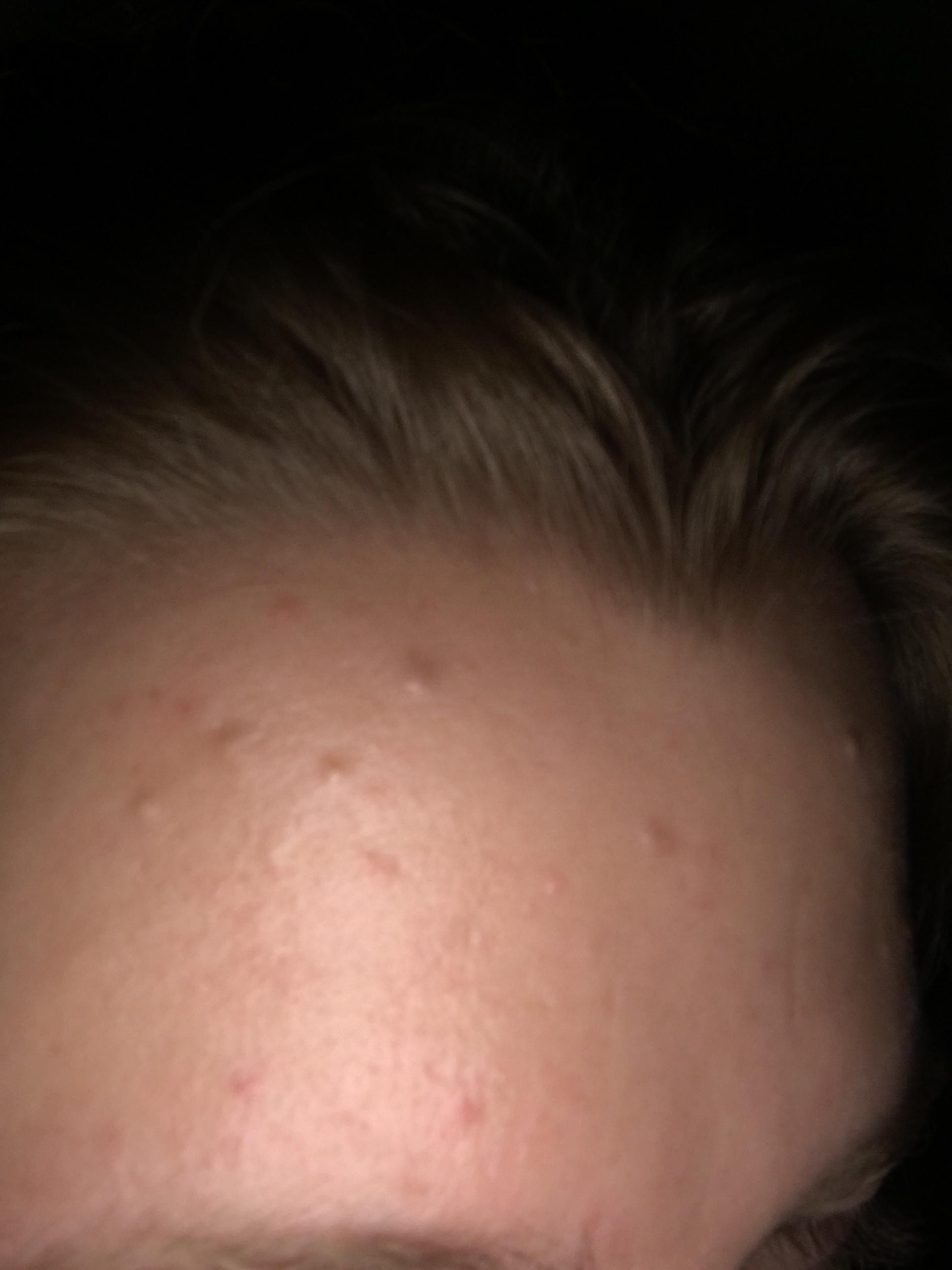 Routine Help] How do I get rid of these small dents? Photo