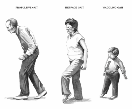 the causes of gait abnormalities | human body | pinterest, Muscles