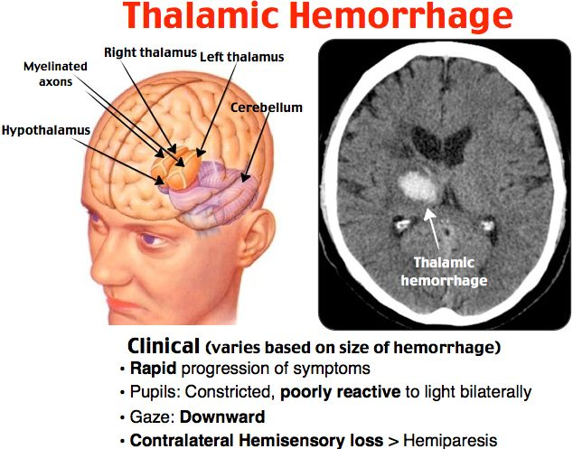 Thalamic Hemorrhage Most Patients Present With Headache And Often