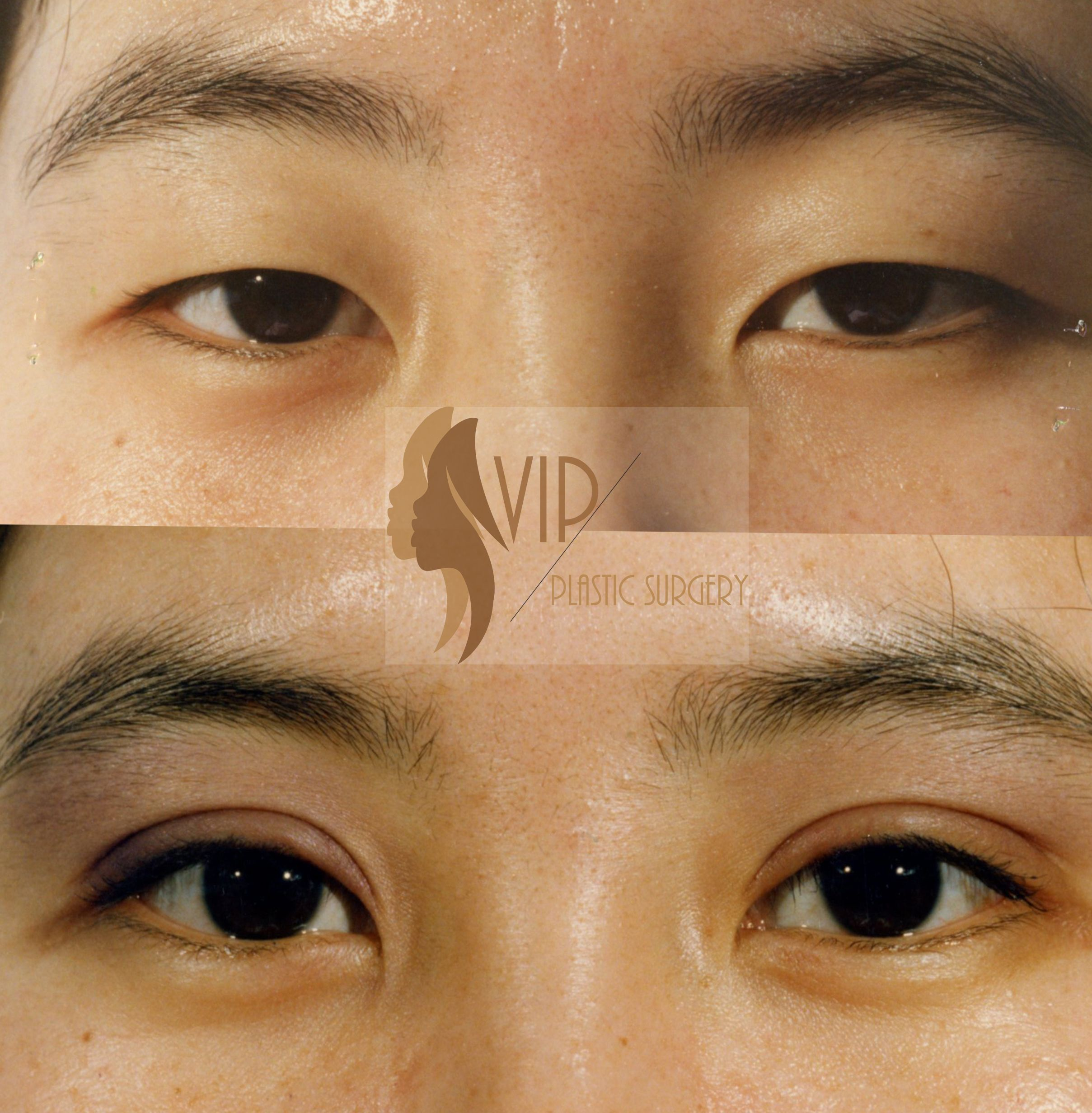Natural incisional Upper Blepharoplasty. VIP Plastic