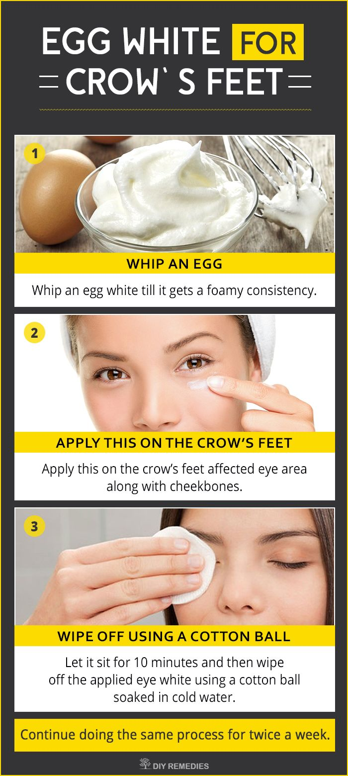 how to get rid of white out