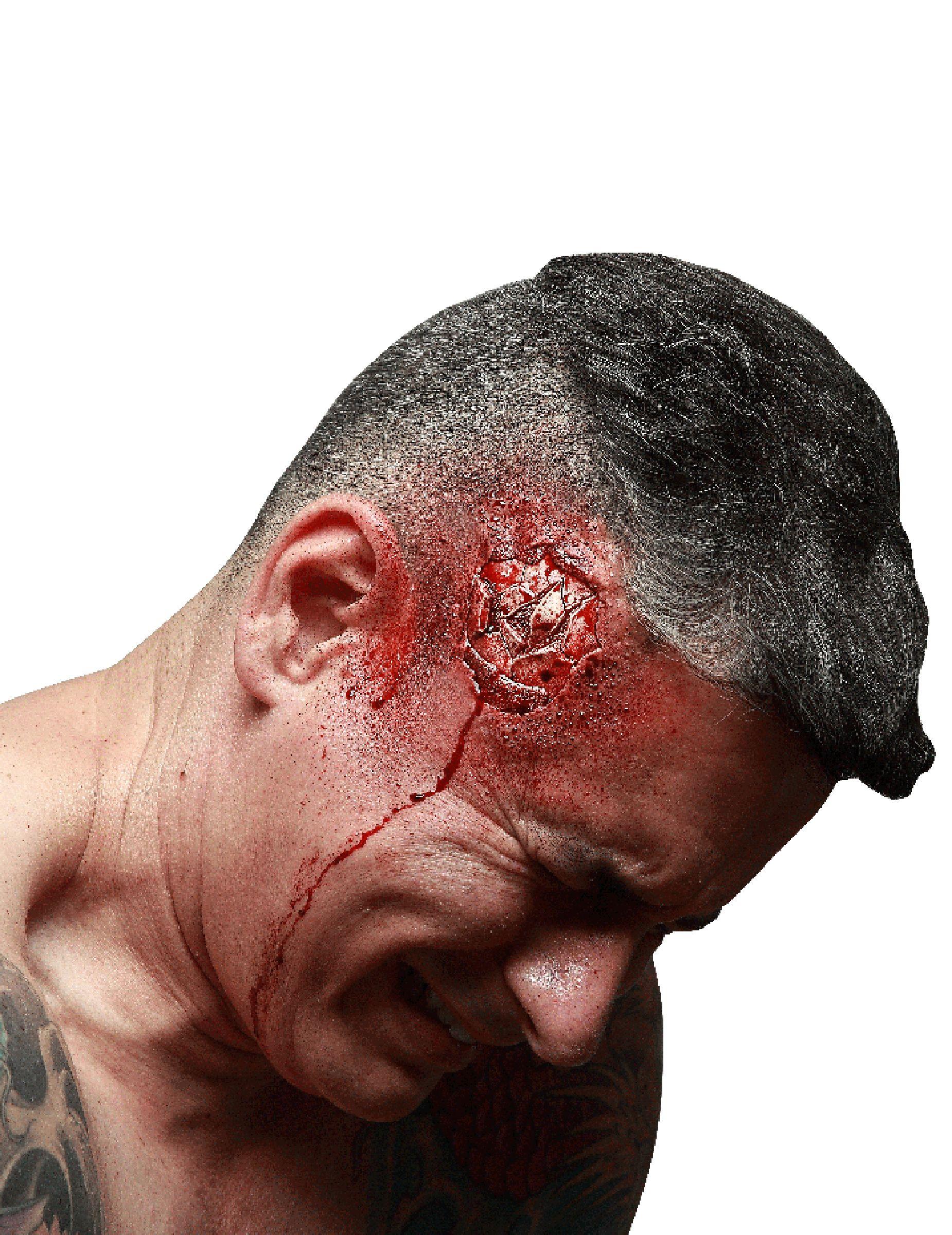Herida falsa cráneo fracturado adulto Halloween: Esta herida falsa es para adulto y mide unos 6 cm de diámetro.Es de látex fino y representa una herida sangrienta en el cráneo después de un golpe.Para su uso: Aplica cola...