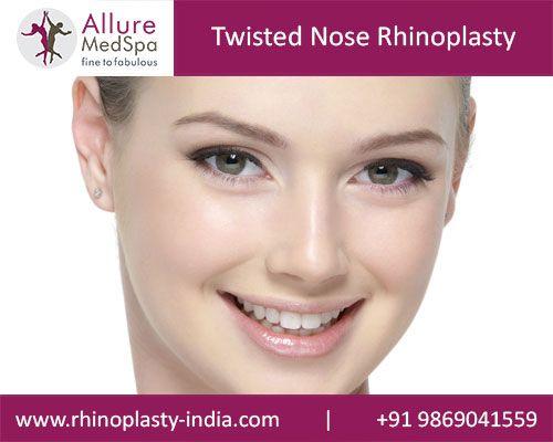 Cost | Rhinoplasty Rhinoplasty cost Nose job