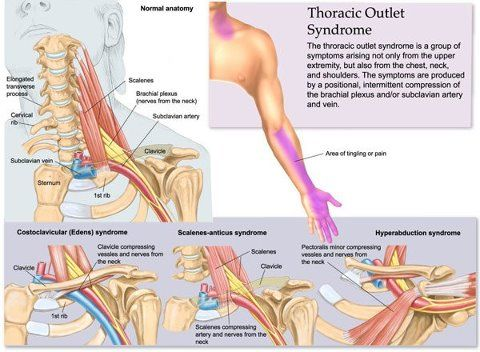 Thoracic Outlet Syndrome | Musculos | Pinterest | Fisioterapia ...