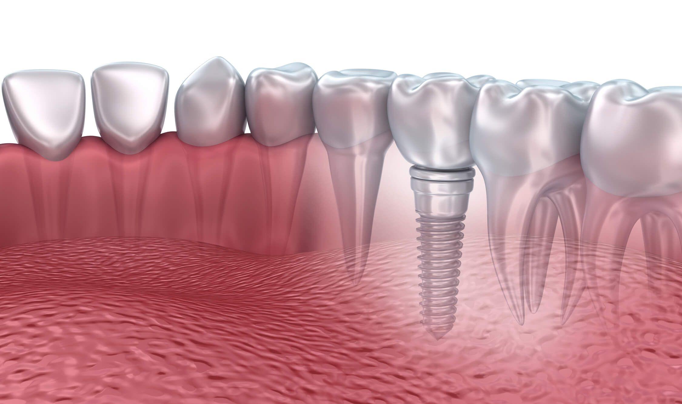 Dental implants in macon ga dental implants dental