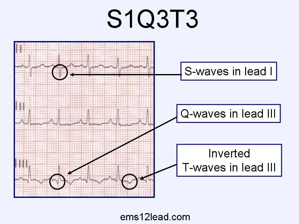 S1q3t3