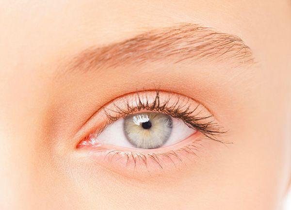 Moisture bumps under the eye, known as milia are tiny white